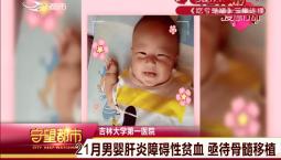 守望都市|21月男婴肝炎障碍性贫血 亟待骨髓移植