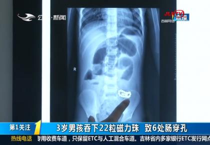 第1报道|3岁男孩吞下22粒磁力珠 致6处肠穿孔