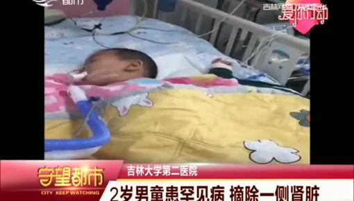 守望都市|2岁男童患罕见病 摘除一侧肾脏