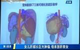第1报道 追踪:女儿肝部长巨大肿瘤 母亲割肝救女