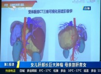 第1報道 追蹤:女兒肝部長巨大腫瘤 母親割肝救女