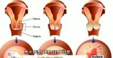吉林卫生|危险的宫颈癌_2019-06-18