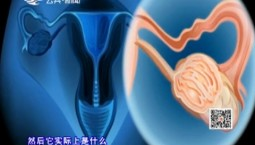 吉林卫生_不可不知的宫颈癌(上)_2018-07-09
