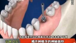 吉林卫生|揭开种植牙的神秘面纱|2018-11-07