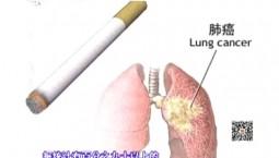 吉林卫生|小细胞肺癌(上)|2018-11-03