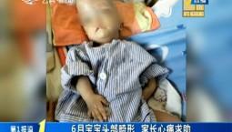 第1報道 6月寶寶頭部畸形 家長心痛求助