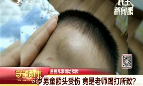 守望都市|4岁男童额头受伤 竟是老师踢打所致?