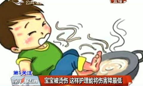 第1报道|宝宝被烫伤 这样护理能将伤害降最低