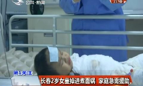 第1报道|长春2岁女童掉进煮面锅 家庭急需援助