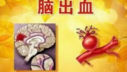 寒冷天氣易引發腦出血 預防關鍵在于控制血壓