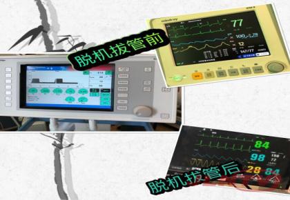 【危急】73岁老人突发心脏病 32次除颤紧急抢救