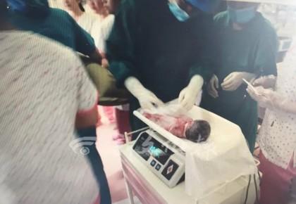 刚刚,长春26岁妈妈生下四胞胎!2男孩2女孩!