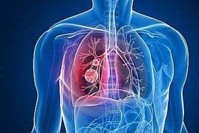 每年約有40萬人被確診,關于肺癌,這些事你應該知道