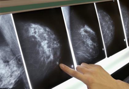 中国专家绘制三阴性乳腺癌队列多组学图谱