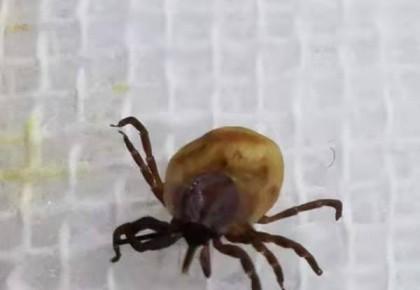 蜱虫作祟叮咬孩童头皮 在家处理千万别这么做……