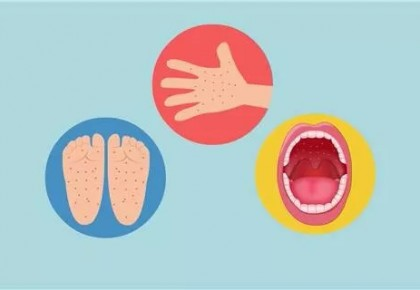 吉林省发布最新传染病疫情!这几种病长春人要注意了