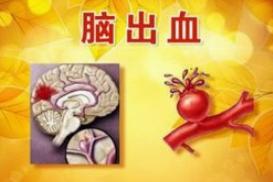 寒冷天气易引发脑出血 预防关键在于控制血压