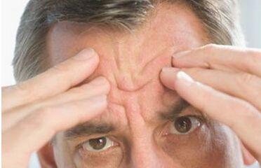 抬头纹多又深?可能是心血管疾病征兆!