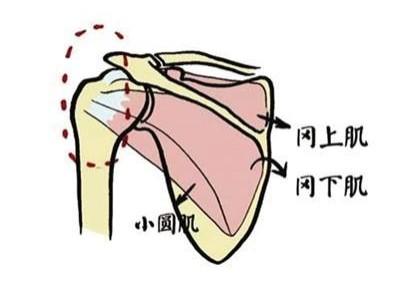 肩膀痛,到底不是肩周炎?一个简单方法就可判断