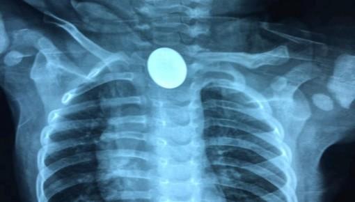 惊险!长春市儿童医院连续接诊两名误吞硬币、易拉罐环儿小患者