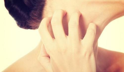 夏季皮肤过敏怎么办?六招助你轻松应对!