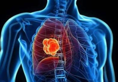 """遠離""""五氣"""" 幫你預防肺癌"""